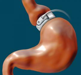 Adjustable_Gastric_Band